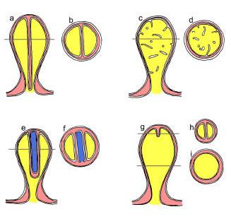 図4. クロララクニオン植物の微分干渉電子顕微鏡写真。矢印はピレノイド... クロララクニオン植